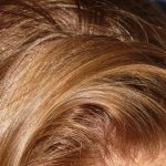 4 remèdes pour éliminer les pellicules des cheveux